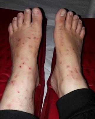 22-wifes-mosquito-bites1